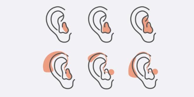 Jak dobrać odpowiedni aparat słuchowy?